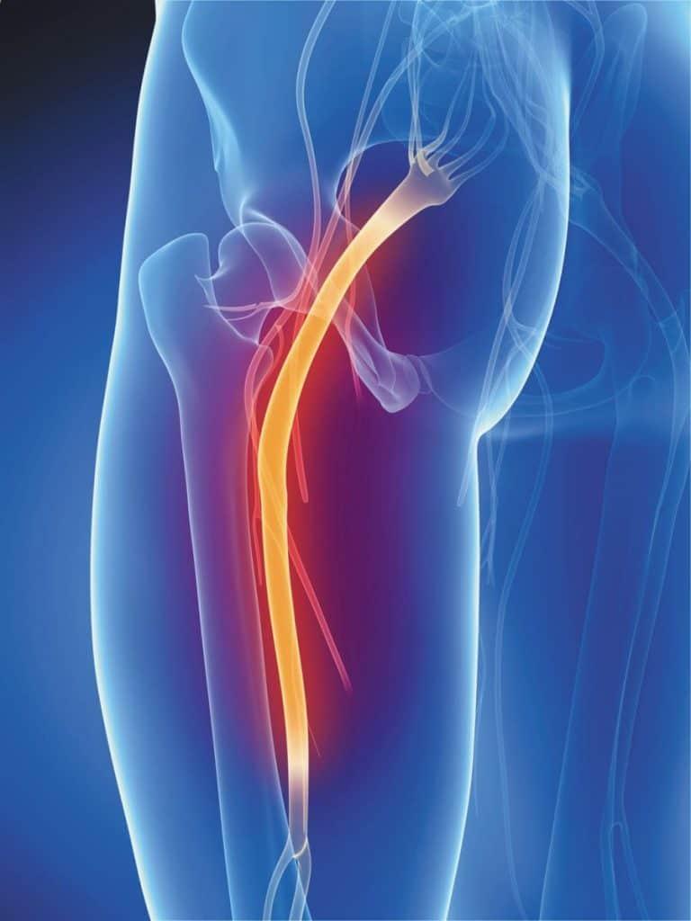אישיאס-דלקת בעצב השת- Sciatica