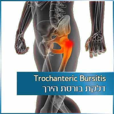 דלקת בורסת הירך - Trochanteric Bursitis