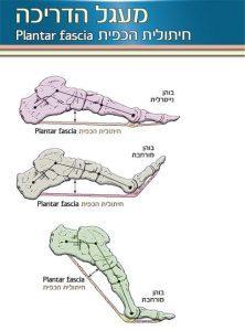 דורבן - דלקת כף הרגל Plantar fasciitis