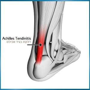 גיד אכילס – Achilles tendon