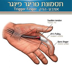 תסמונת אצבע-ההדק – Triger finer syndrome