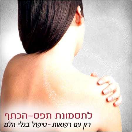 תסמונת הצביטה בבכתף